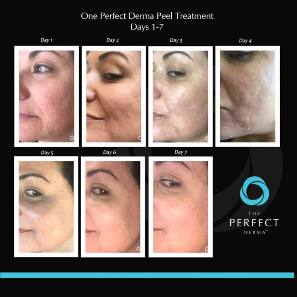 The-Perfect-Derma-Peel-1